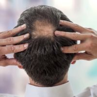 Is Transplant The Only Solution For People Suffering From Hair Loss?