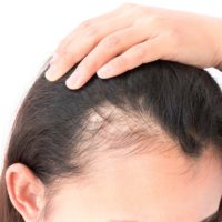 Can Makeup Cause Your Hair Loss In The Eyebrow Area?